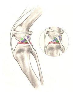 Cranial Cruciate Ligament Repair - Canine Knee Surgery