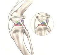 Cranial Cruciate Ligament Disease